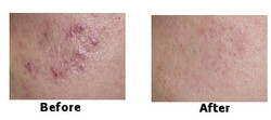 before after acne xfoliator