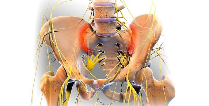 si-joint-pain.jpg