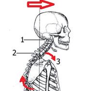 Le syndrome d'antéprojection de la tête
