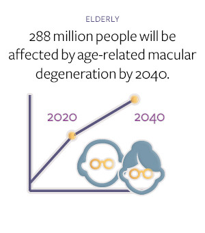 Age-related Macular Degeneration (AMD) on the Rise