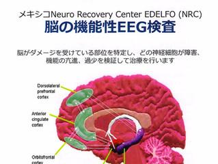 脳の機能性EEG検査(Edelfo)日程決定のお知らせ