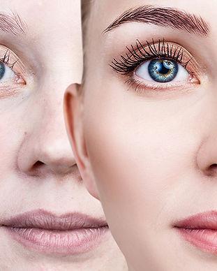 Maquillaje-para-acne-como-deben-ser-los-