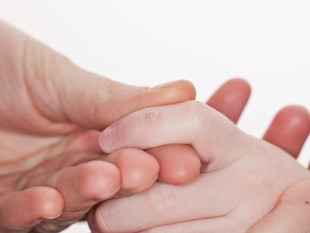 How to Get Rid of Warts on Kids: Causes and Remedies