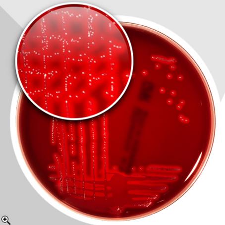 Complemente el diagnóstico de microorganismos causantes de infecciones del tracto genitourinario