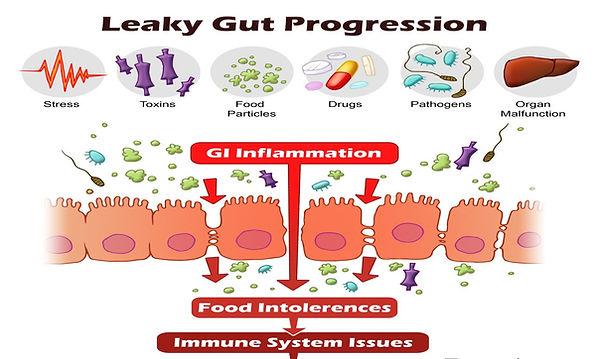 leaky gut.jpg