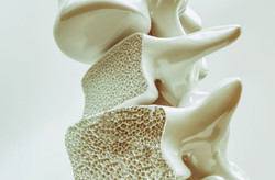 osterporosisSpine-950295868-770x533-650x