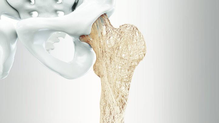 Crohns-Disease-and-Your-Osteoporosis-Ris