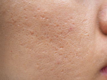 icepick scars acne on cheek on face in w