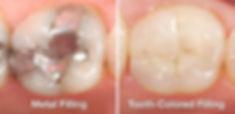 metal-vs-tooth-colored-fillings.jpg