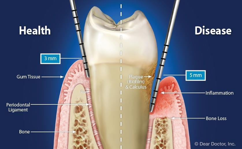 health-vs-disease-periodontal-pocket.jpg