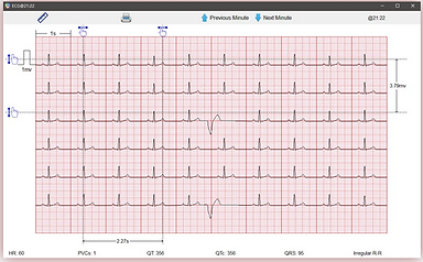 holter 2.PNG