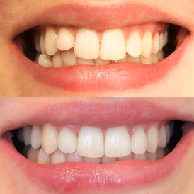 Tann som stikker ut