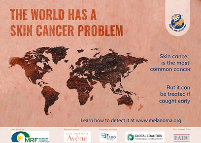 The world has a skin cancer problem