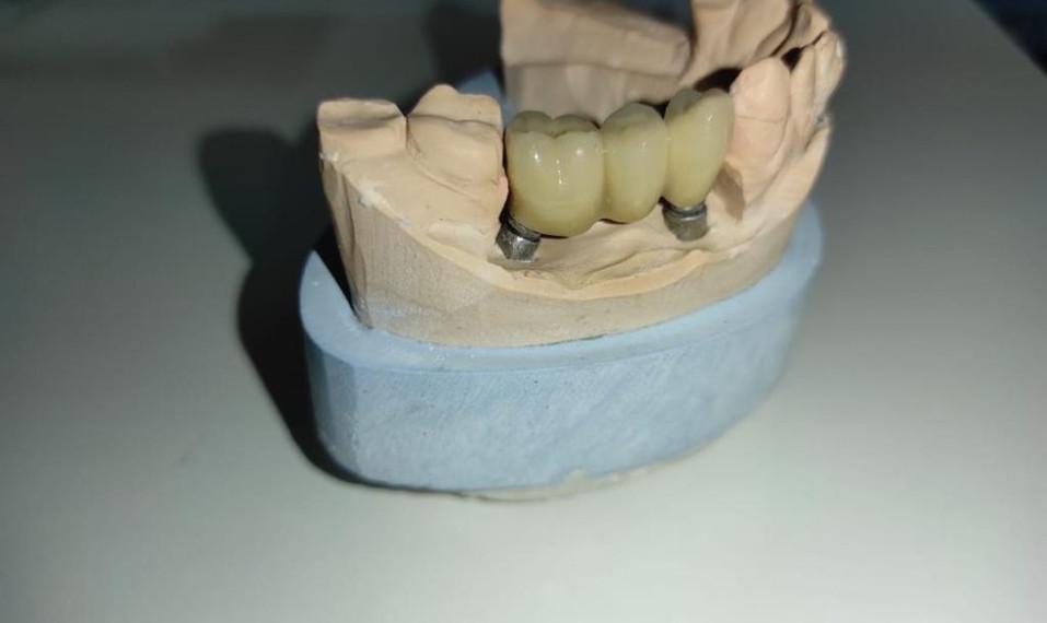 Стоматология reGen Dent