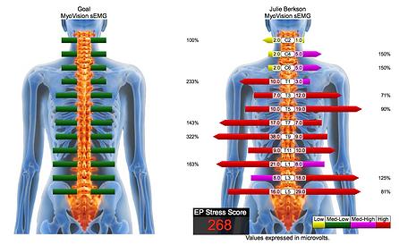Spinal electromyography (sEMG)
