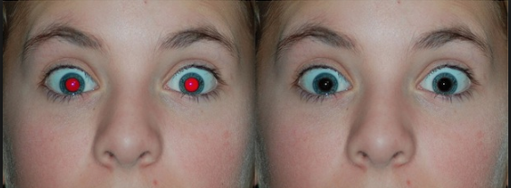 Red eye removal.