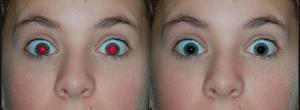 Red eye removal.