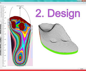 3D foot scan orthotic insoles_edited.jpg