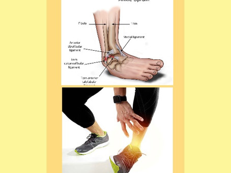 Ankle Sprain Running Injury