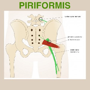 Piriformis Injury Prevention and Healing