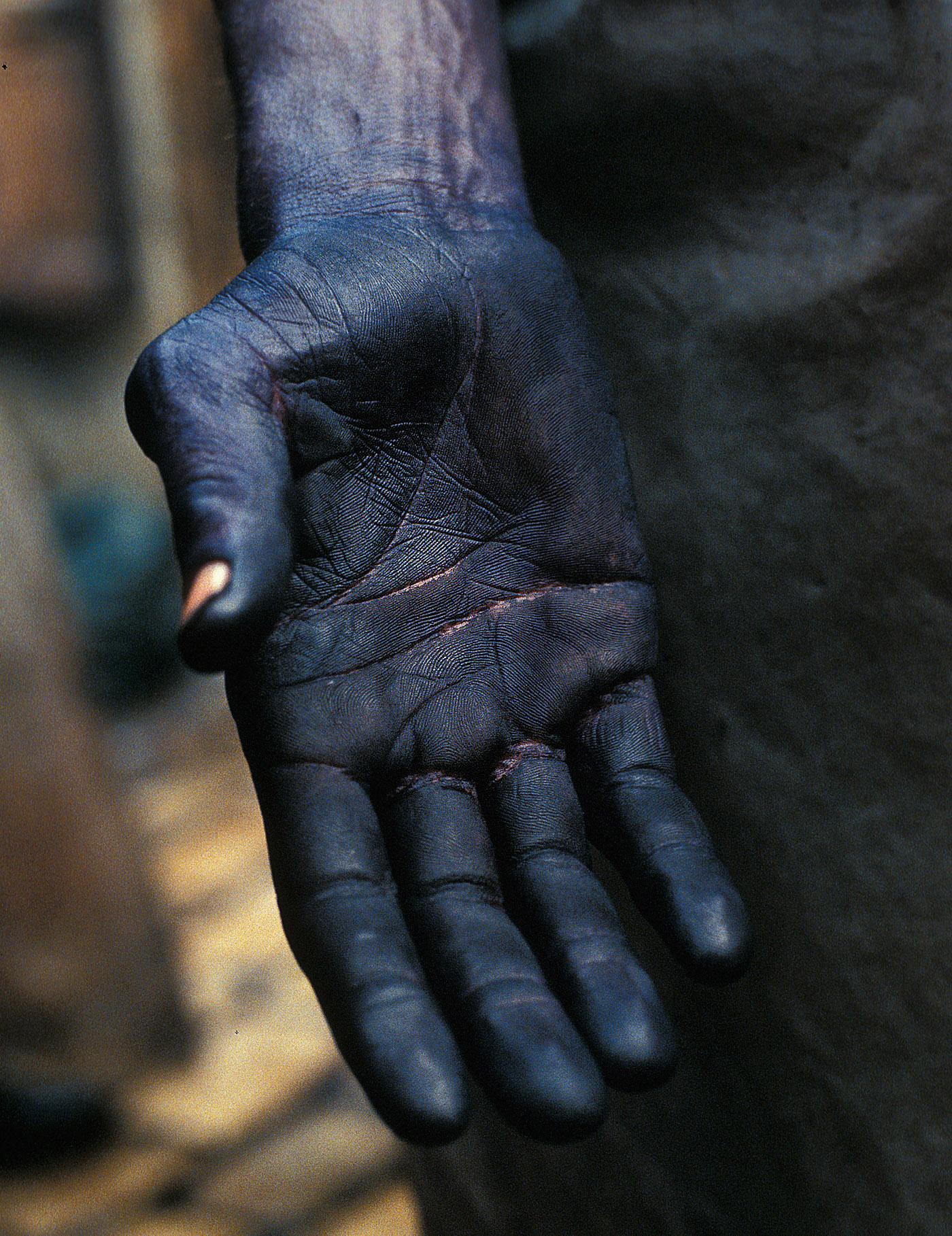 Dyer's hand