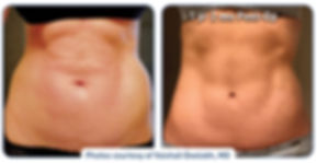 renuvion_before-after_patient1-abdominal