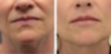 Ultherapy before and after older womans