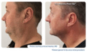 renuvion_before-after_neck4-photos_side-