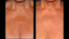 Ultherapy before and after women's chest
