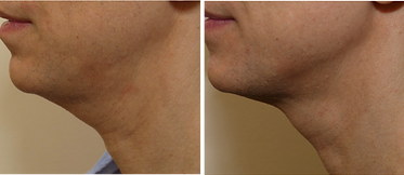 Ultherapy before and after male chin and