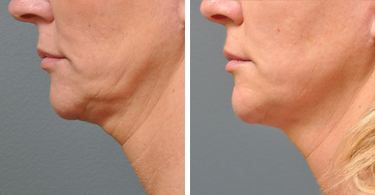 Ultherapy before and after women chin_ne