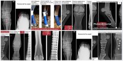 Focus fractures