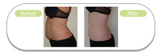 Lipofirm-before-after-2.jpg