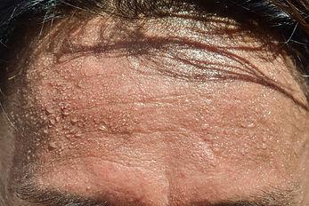 forehead sweat.jpg