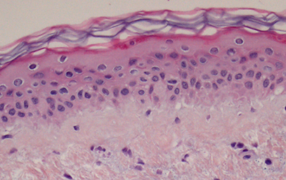 Histology old and new skin.png