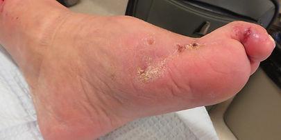Ulcer medial foot closed.jpg