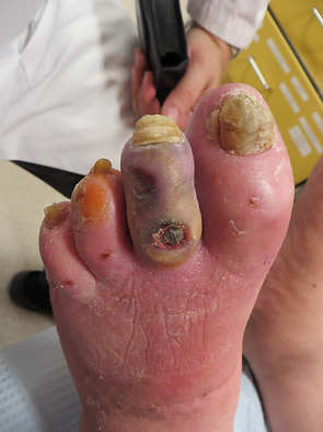 dysvascular 2nd toe.png