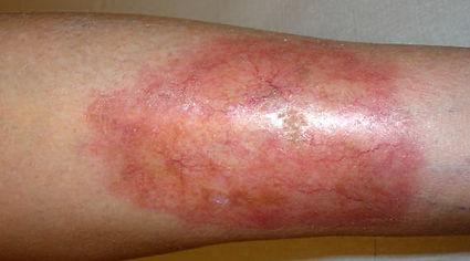 necrobiois-lipoidica-diabeticorum73.jpg