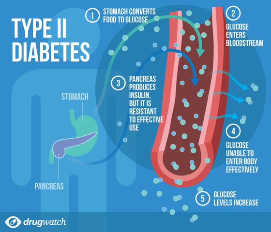 Diabetes Type 2 & How Resveratrol can HELP you!