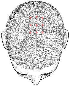 Crâniopuntura, Crânioacupuntura, Acupuntura craniana, casadaterra, YNSA