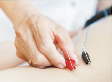 Eletroacupuntura, eletroestímulo, acupuntura