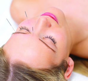 acupuntura, estética por acupuntura, acupuntura estética