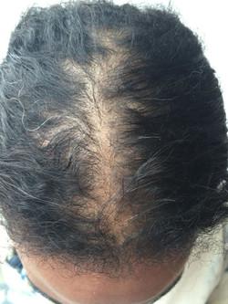 gallery-1434397168-hair-part-before