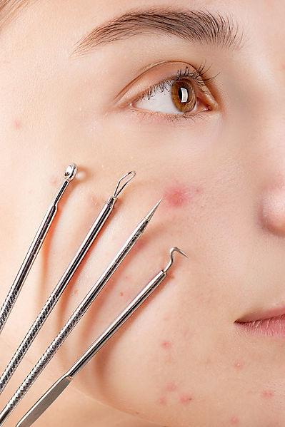 acne y utensilios (1).jpg