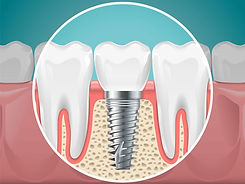 IMG-immediate-tooth-replacement-with-den