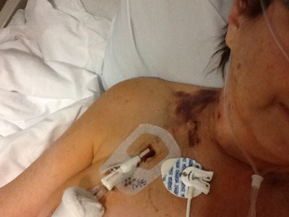 In the hospital recovering from multiple organ donations.