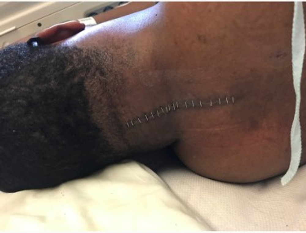 The stitches given after surgery.