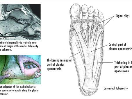 Plantarfasciitis and chiropractic