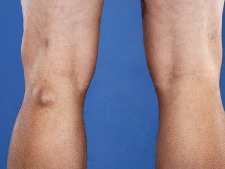 What is Baker's Cyst (popliteal cyst)and how do we Treat it?