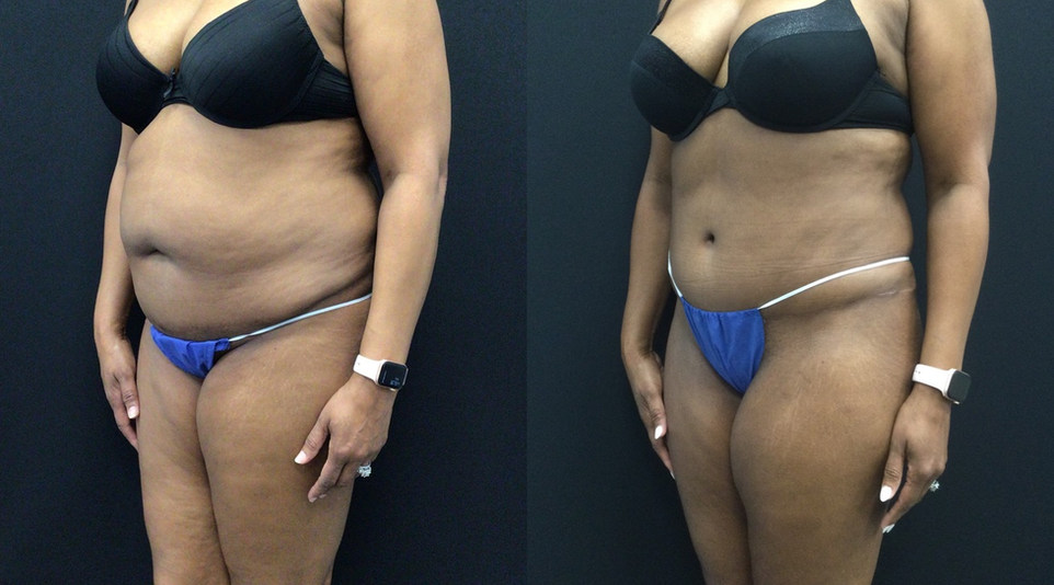 Before and After Abdominoplasty